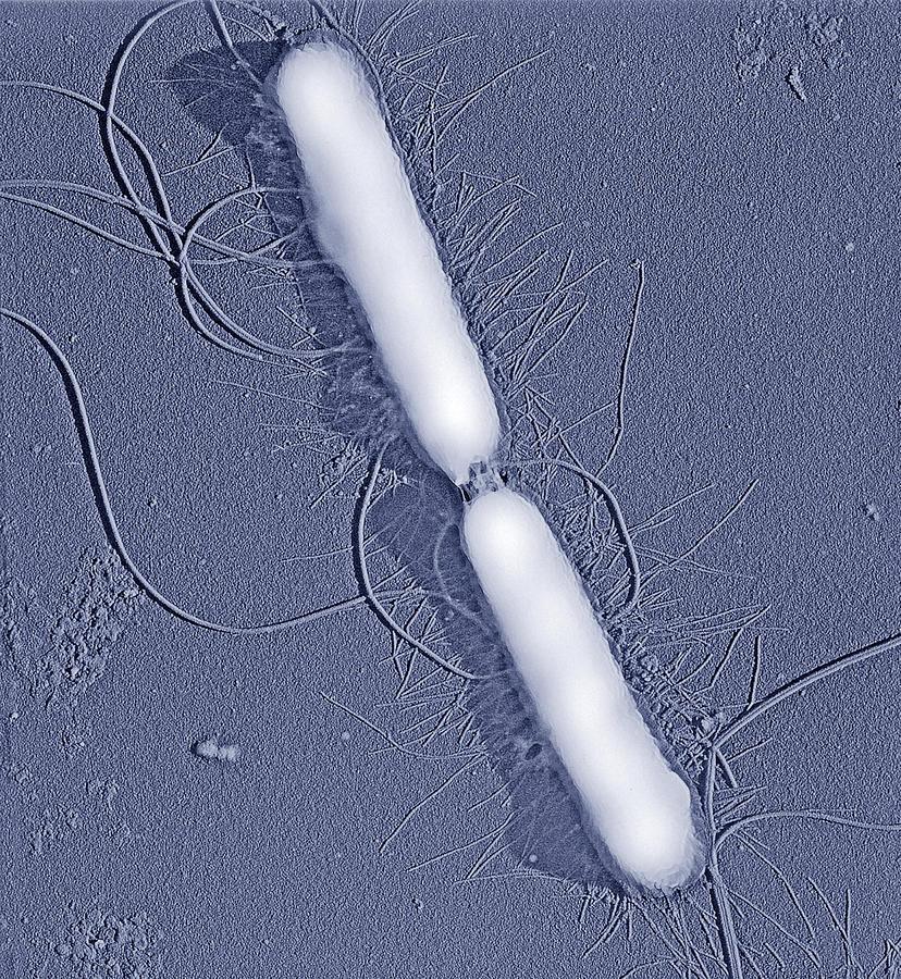 Proteus Vulgaris Bacteria, Sem Photograph