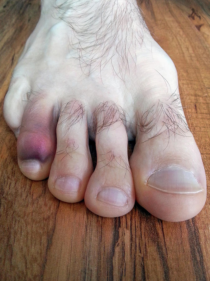 Black And Blue Stubbed Toe Photograph