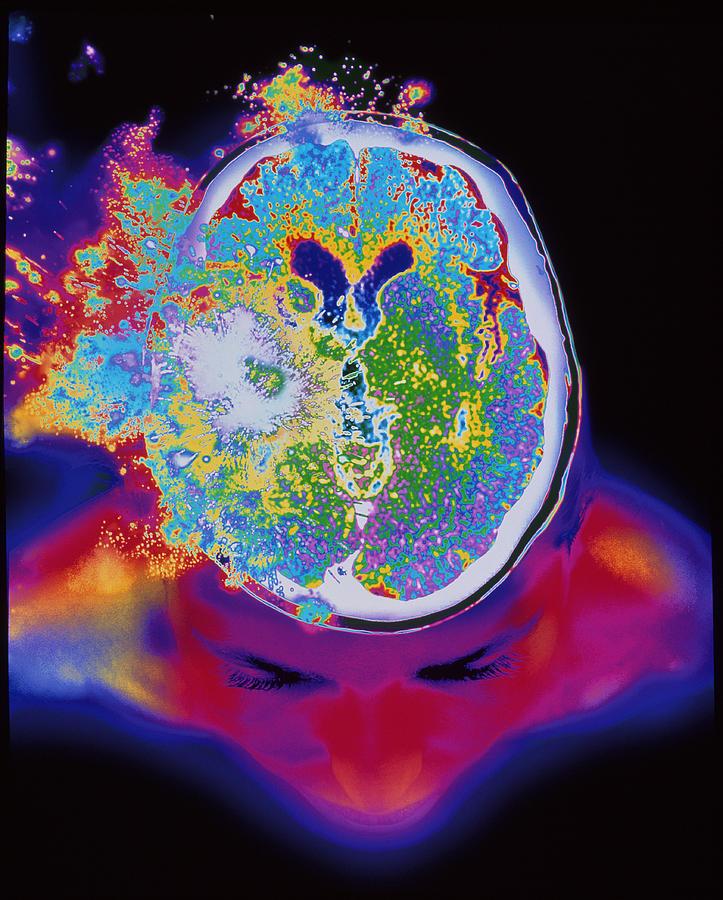 Brain Malfunction Photograph
