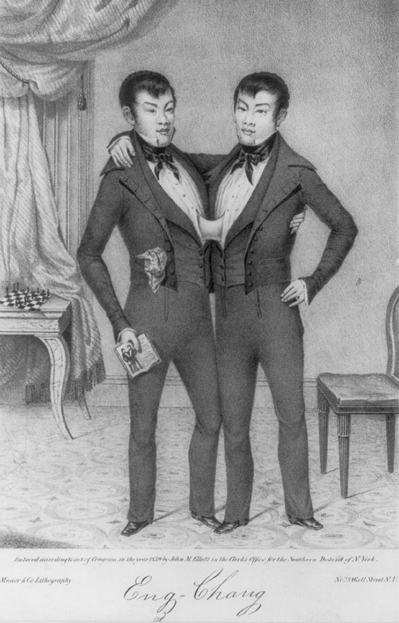 Chang And Eng, 1811-1874, Conjoined Photograph