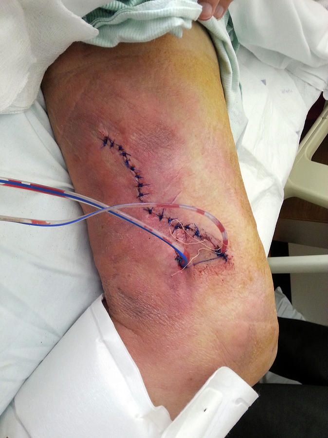 Healing Leg Wound With Stitches And Drain Photograph