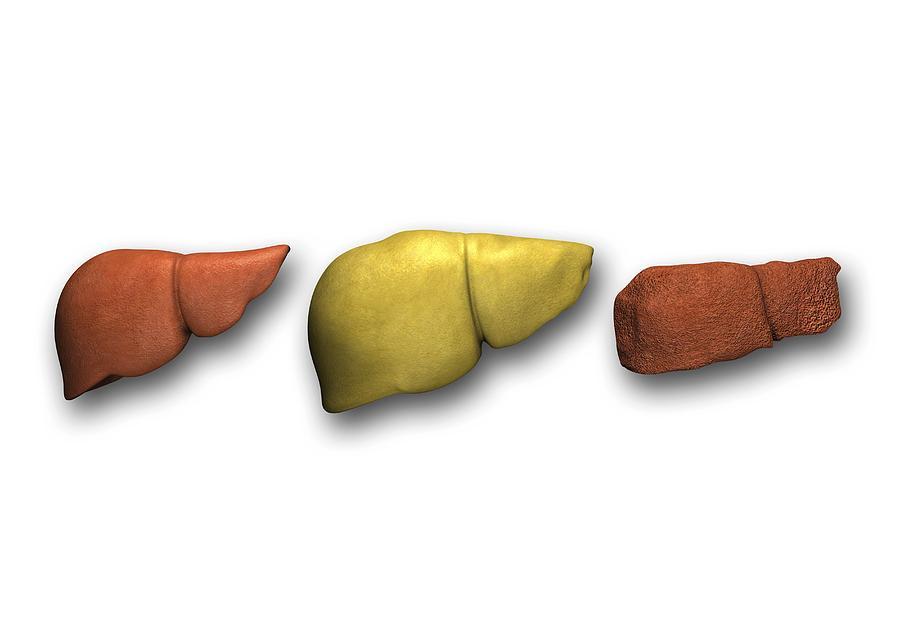 Cirrhosis Photograph - Liver: Normal, Fatty, Cirrhotic by Pasieka