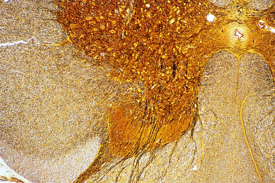 Spinal Cord Photograph - Lm Of A Section Through The Human Spinal Cord by Power And Syred