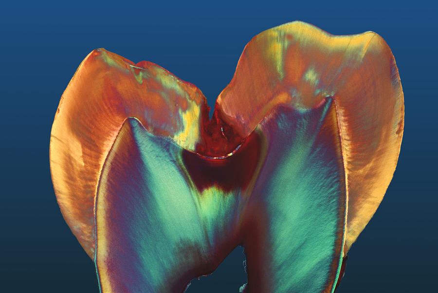 Enamel Photograph - Polarised Lm Of A Molar Tooth Showing Decay by Volker Steger