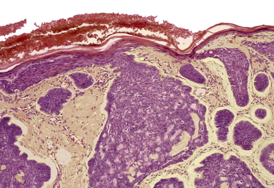 Rodent Ulcer Photograph - Skin Cancer, Light Micrograph by Steve Gschmeissner
