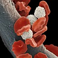 Leukaemia Blood Cells, Sem Print by Steve Gschmeissner