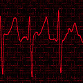 Atrial Fibrillation by Science Source
