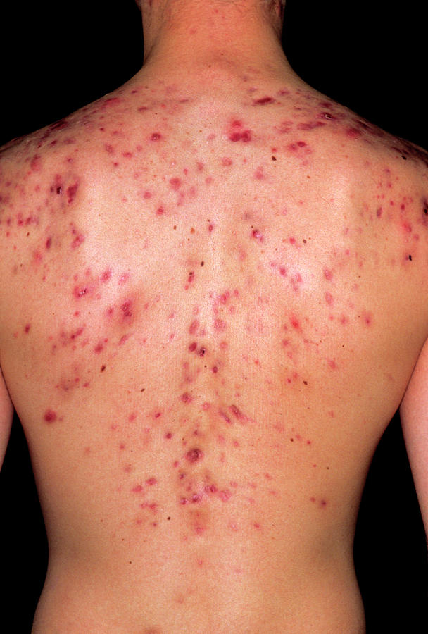 Acne Vulgaris On The Back Of A Young Man Photograph by Dr ...