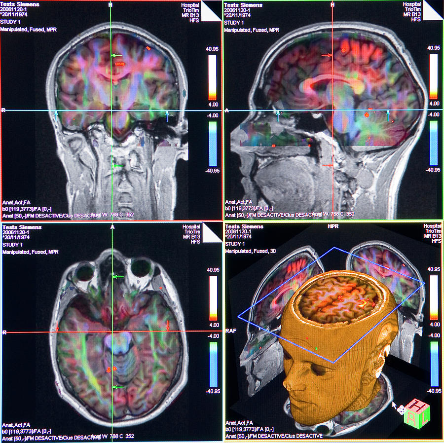 Human Photograph - Advanced Mri Brain Scans by Philippe Psaila/science Photo Library