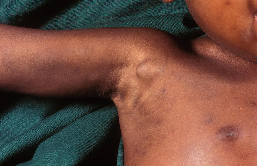 Boy Photograph - Aids Child by Dr M.a. Ansary/science Photo Library