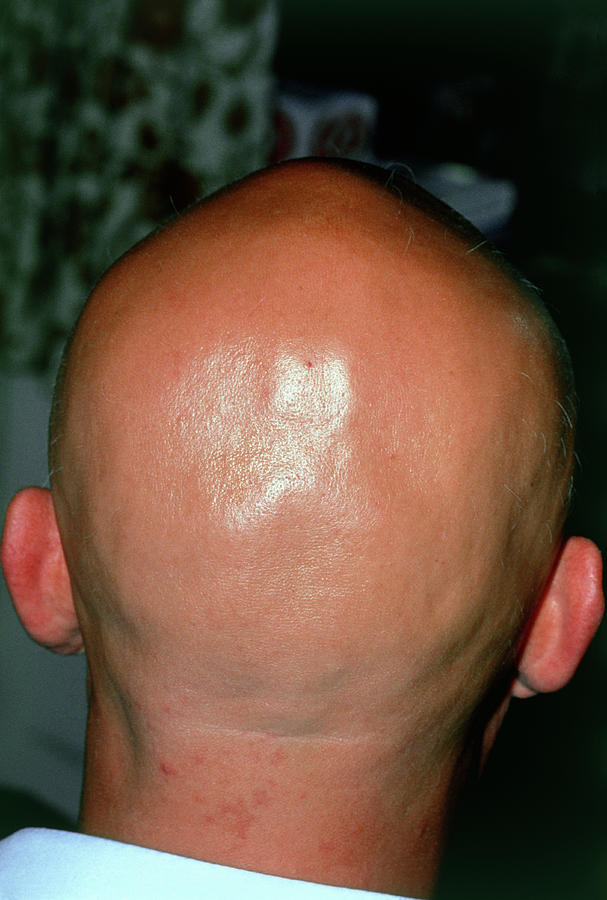 Baldness Photograph - Alopecia Areata (hair Loss) Over The Scalp Of Man by Dr P. Marazzi/science Photo Library