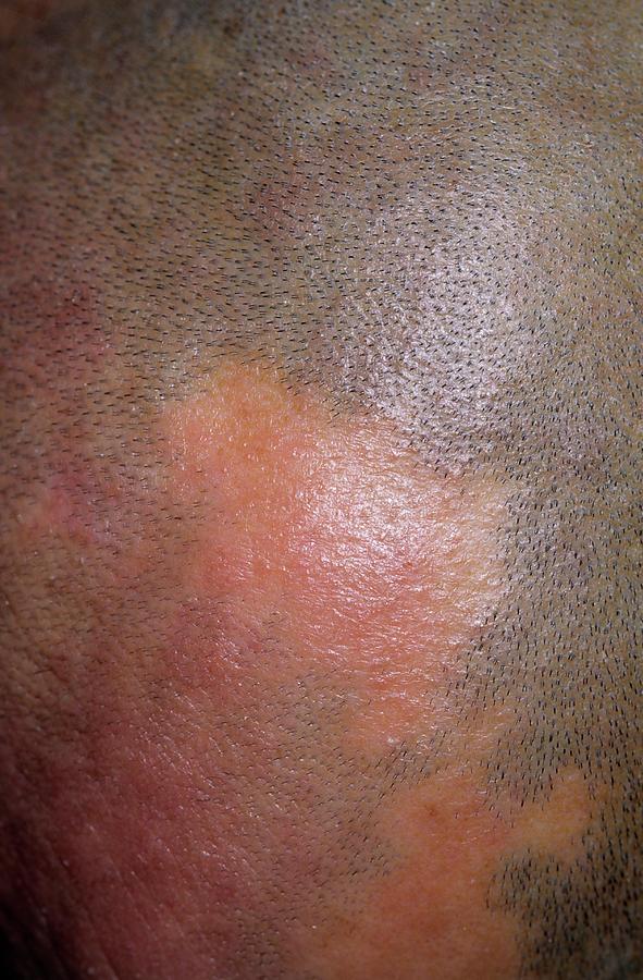 Alopecia Photograph - Alopecia by Dr P. Marazzi/science Photo Library