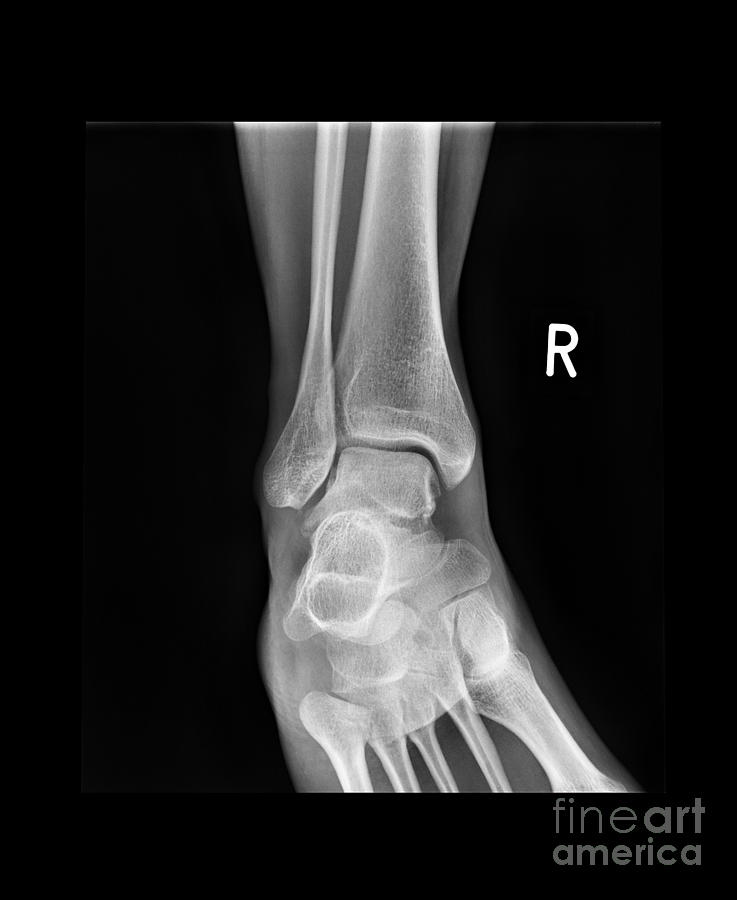 Ankle Bone Fracture, X-ray Photograph by Science Photo Library