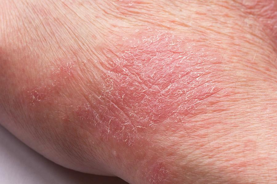 Atopic Eczema - Right Hand - 53 Year Old Photograph by ...
