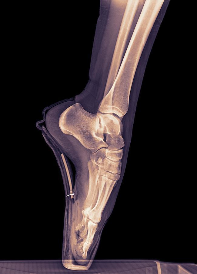 Agility Photograph - Ballet Dancer X-ray by Photostock-israel