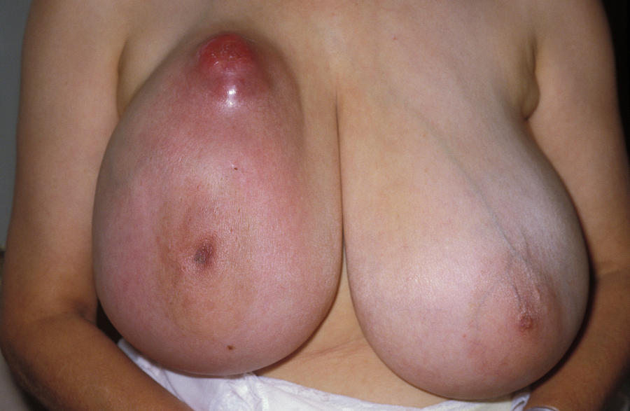 Breast Cancer Dimpling