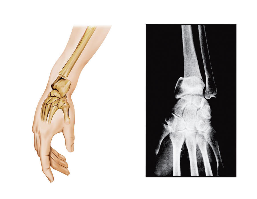 A wrist fracture is a common orthopedic injury Patients who sustain a broken wrist may be treated in a cast or may need surgery for treatment