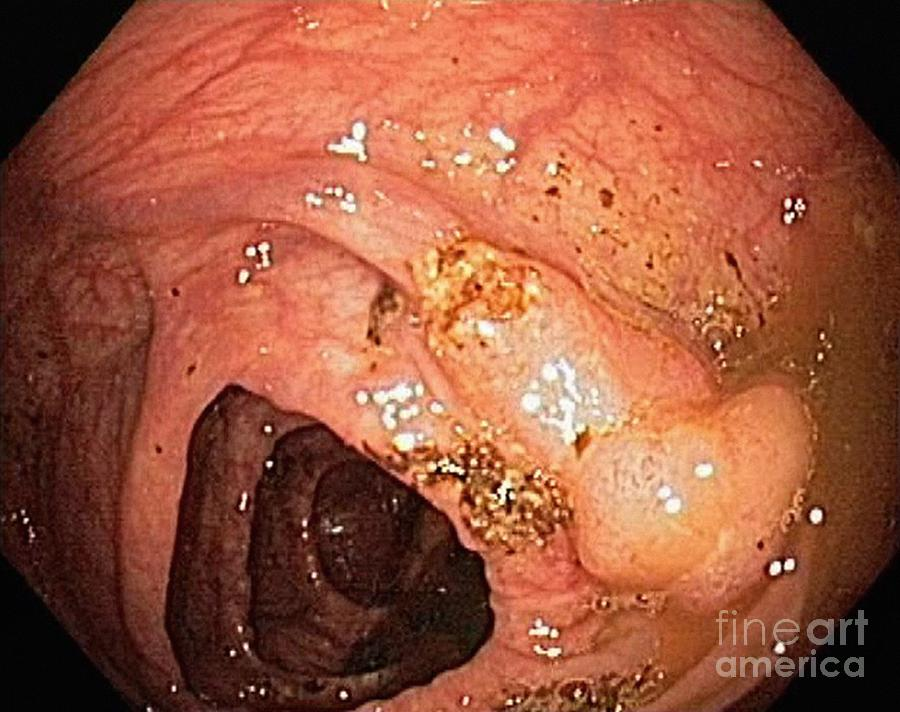Colon Cancer Endoscopic View Photograph By Gastrolab