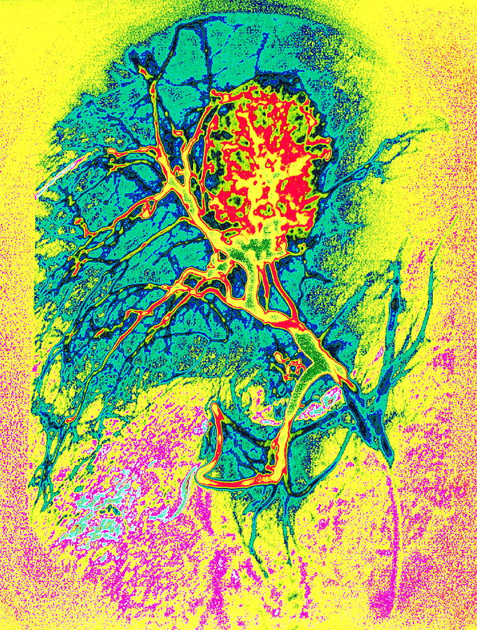 Liver Cancer Photograph - Coloured Angiogram X-ray Of A Tumour In The Liver by Mehau Kulyk/science Photo Library