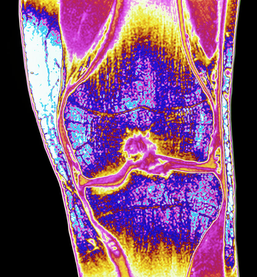Coloured Mri Of A Section Through A Knee Joint Photograph By
