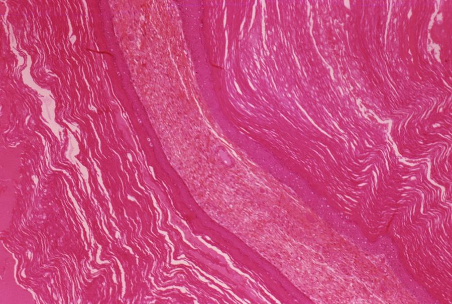 Dermoid Ovarian Cyst Photograph by Cnri/science Photo Library