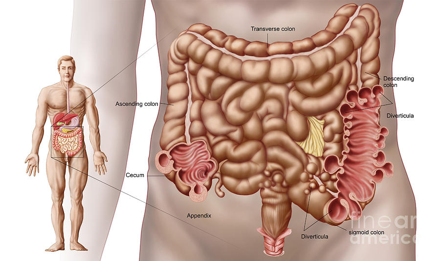 Disease Digital Art - Diverticulitis In The Descending Colon by Stocktrek Images
