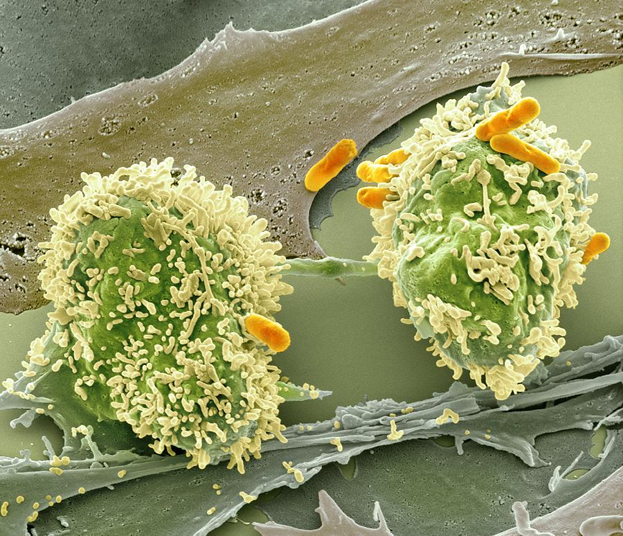 Abnormal Photograph - Dividing Cancer Cell, Sem by Science Photo Library