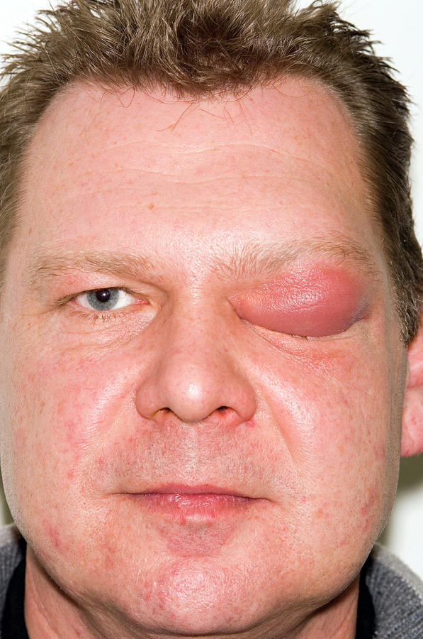 Human Photograph - Eyelid Abscess by Dr P. Marazzi/science Photo Library