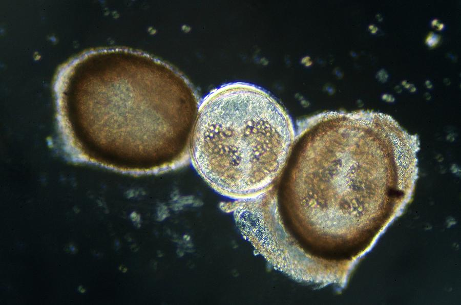 Cyst Photograph - Fasciola Hepatica Metacercari by Sinclair Stammers
