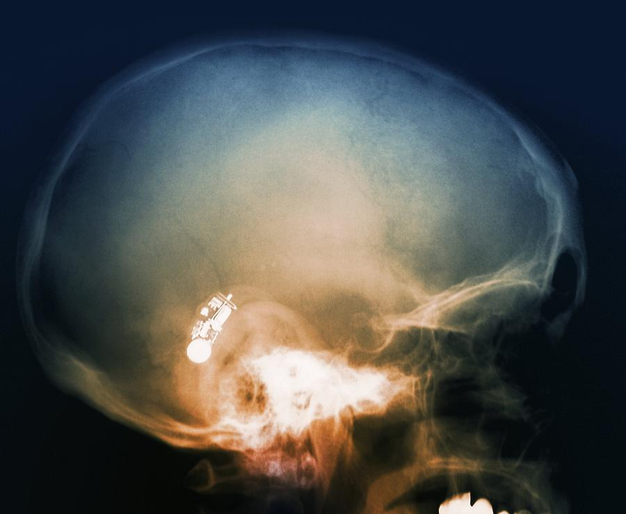Anatomy Photograph - Hearing Aid, X-ray by Science Photo Library