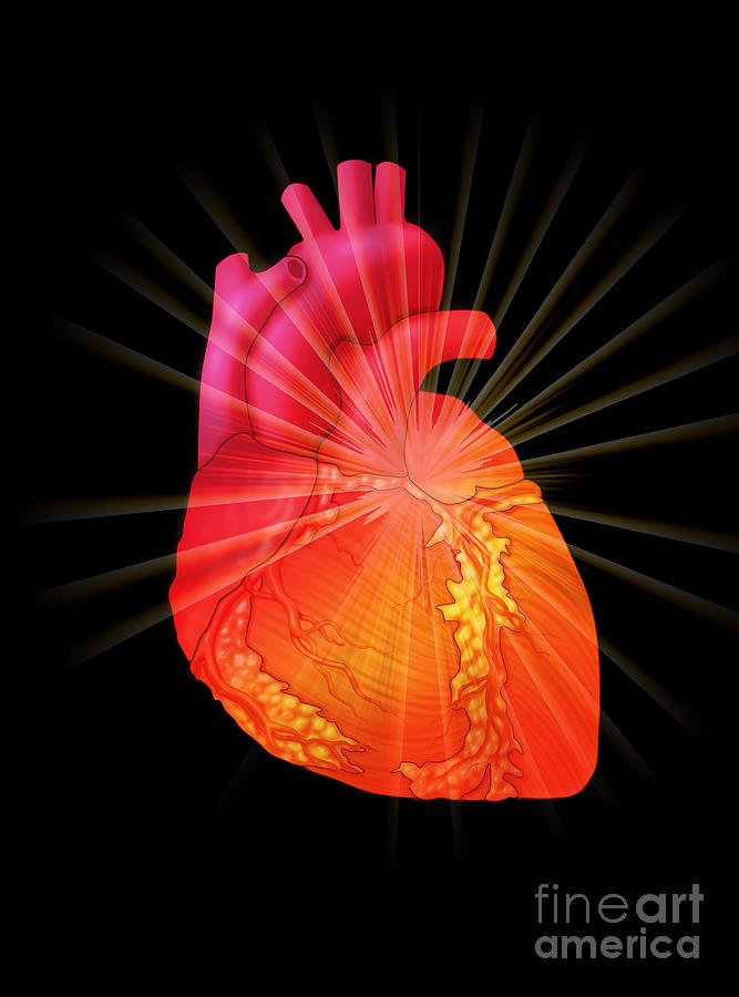 Science Photograph - Heart Attack, Conceptual Illustration by Monica Schroeder