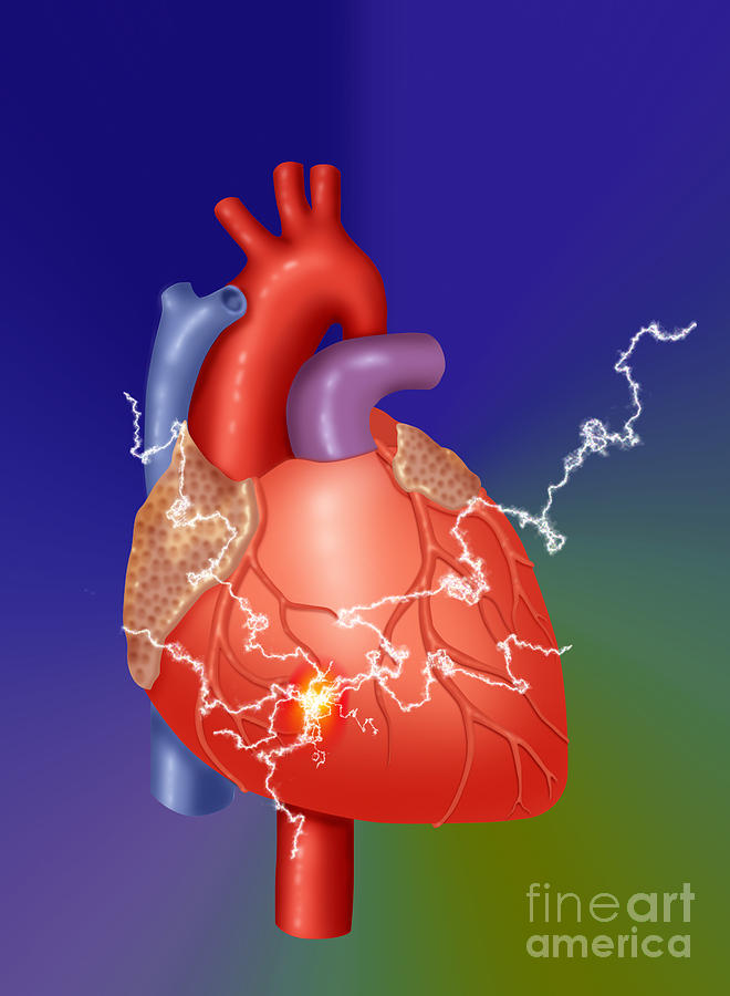 Heart Attack Photograph - Heart Attack by Monica Schroeder / Science Source