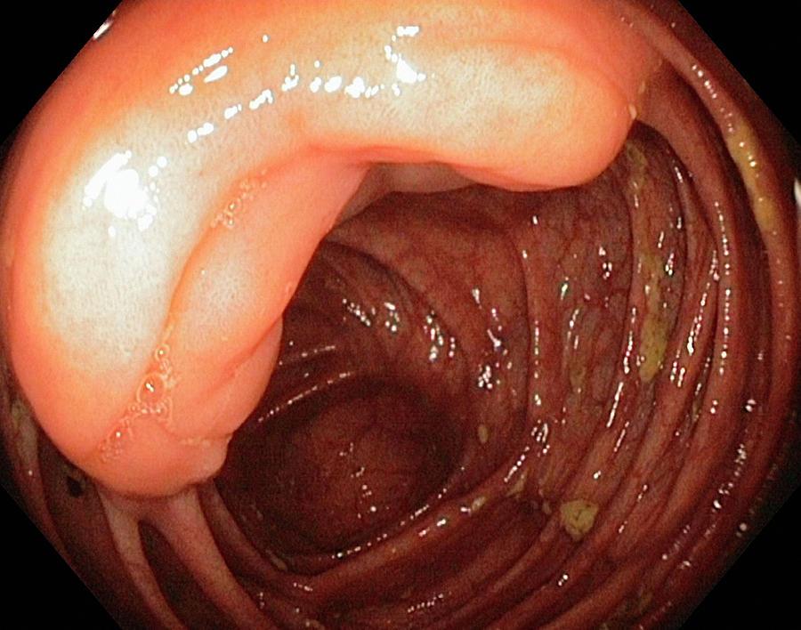 Abdomen Photograph - Ileocaecal Valve by Gastrolab