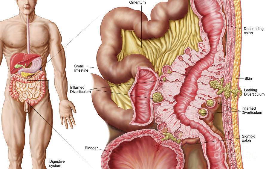 Inflammation Digital Art - Illustration Of Diverticulosis by Stocktrek Images