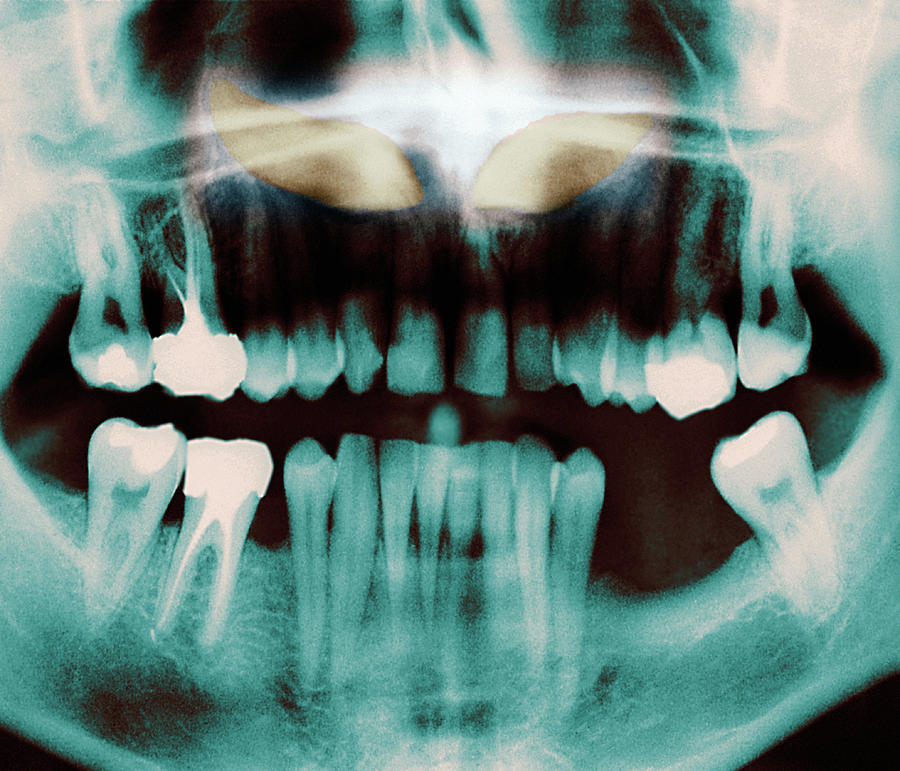 Black-and-white Photograph - Impacted Incisors by Zephyr/science Photo Library