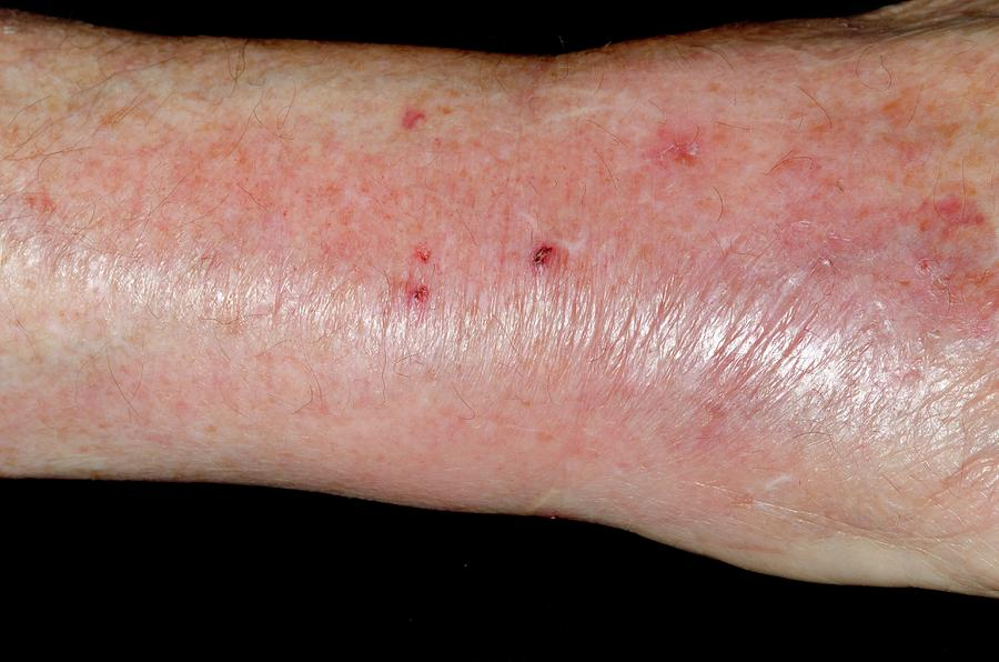 Red Photograph - Infected Cat Bite On The Wrist by Dr P. Marazzi/science Photo Library