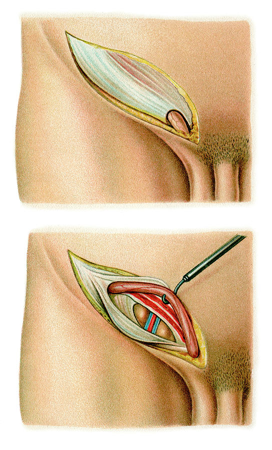 Peritoneum Photograph - Inguinal Hernia Surgery by Science Photo Library