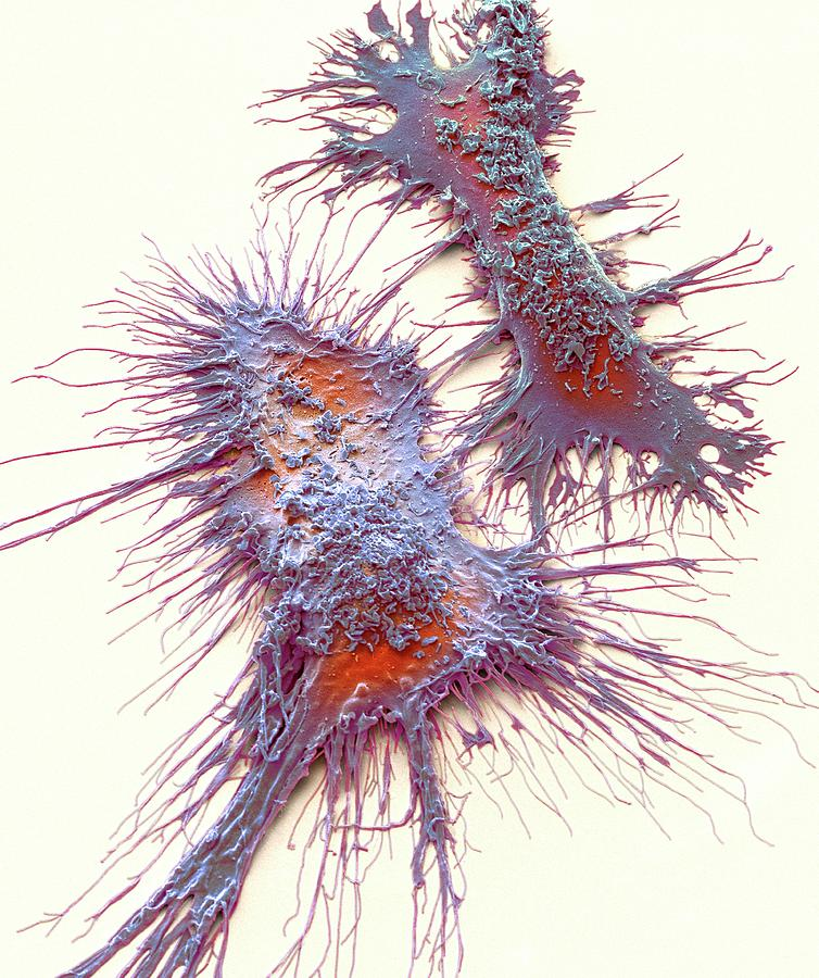 Anatomical Photograph - Microglia by Steve Gschmeissner