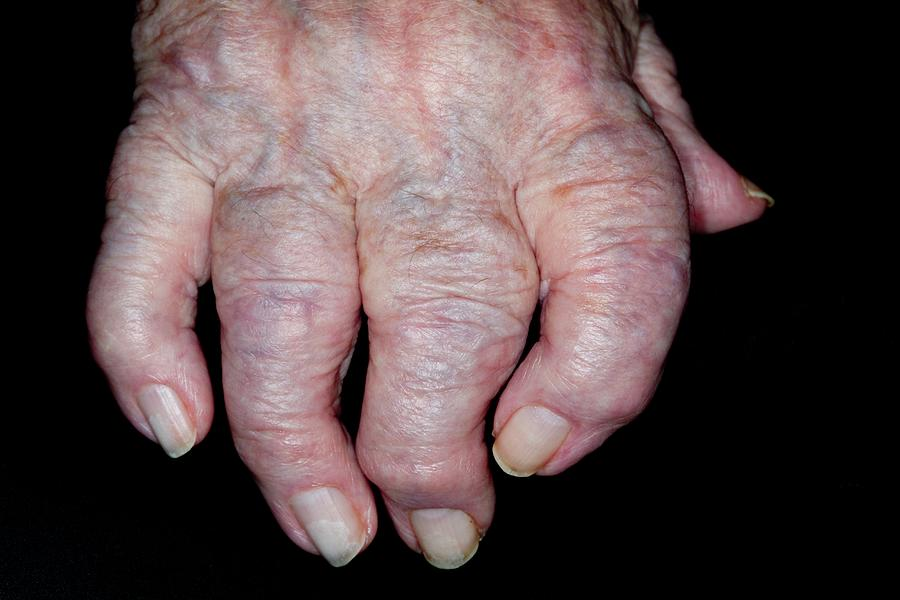 Swollen Photograph - Osteoarthritis Of The Hand by Dr P. Marazzi/science Photo Library