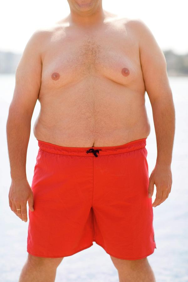 Human Photograph - Overweight Man by Ian Hooton/science Photo Library