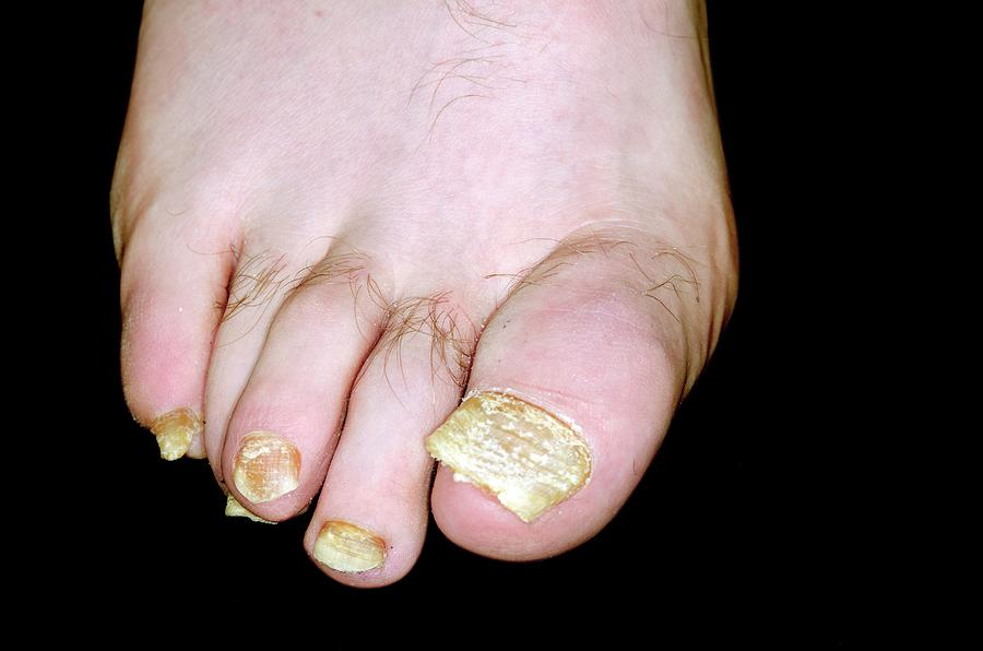 Psoriasis Of The Toenails by Dr P. Marazzi/science Photo Library
