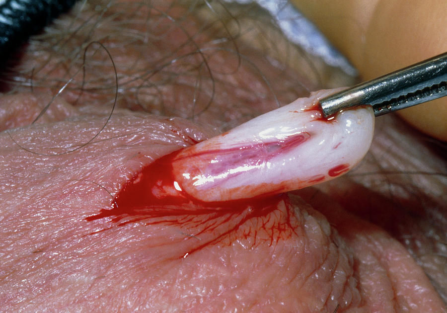 Removing Vas Deferens During A Vasectomy Operation Photograph