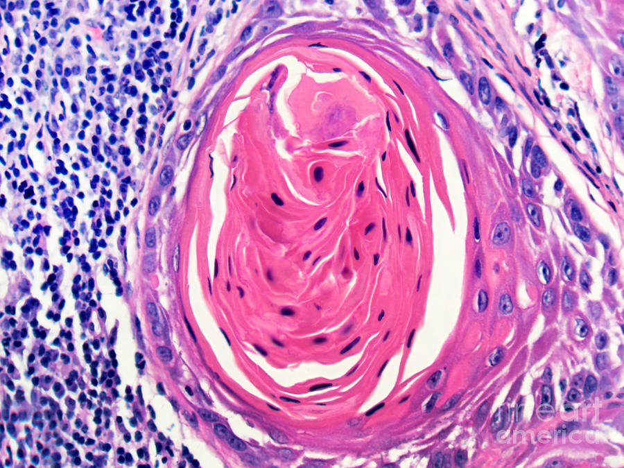 Light Micrograph Photograph - Squamous Cell Carcinoma, Keratin Pearl by Garry DeLong
