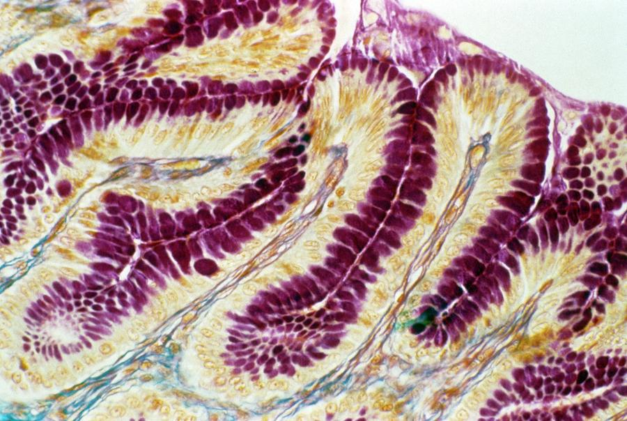 Stomach Lining Photograph By Cnri