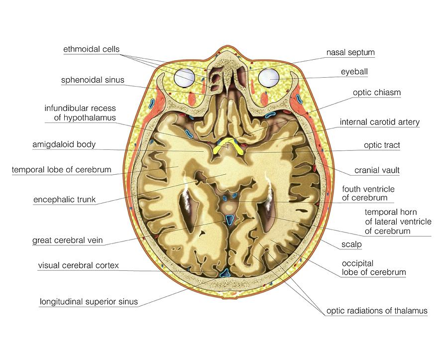 Transverse Section At Eyes Level Photograph By Asklepios Medical Atlas