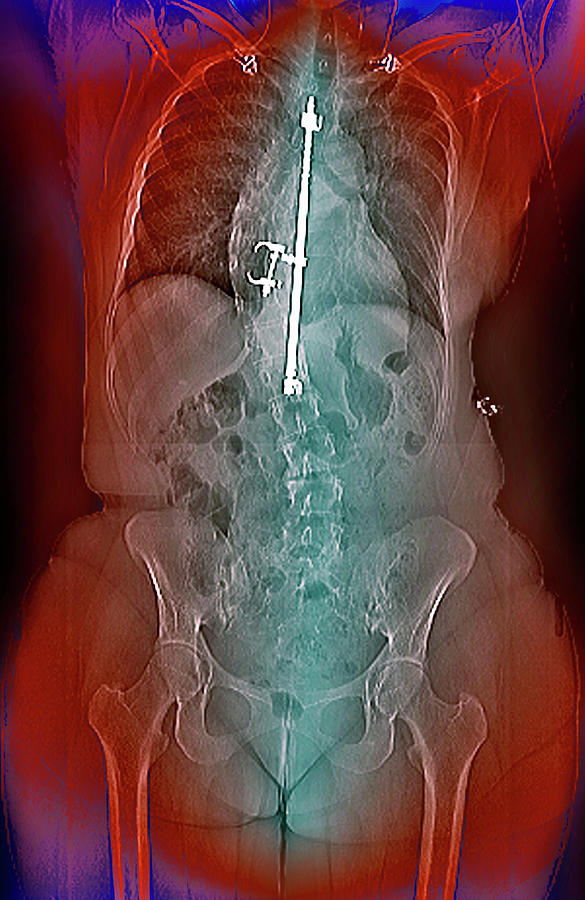 Harrington Rod Photograph - Treatment For Scoliosis by Zephyr/science Photo Library