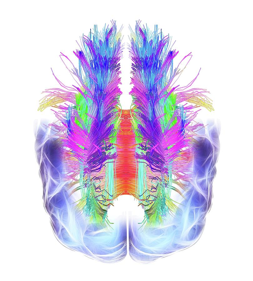 Brain Photograph - White Matter Fibres And Brain by Alfred Pasieka