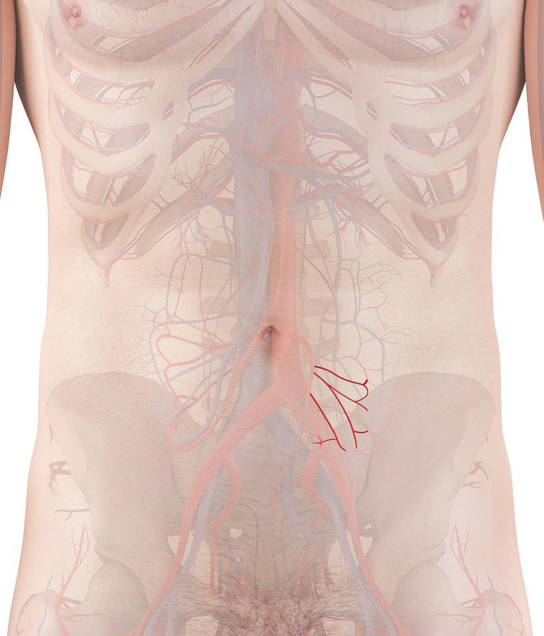 Artwork Photograph - Human Arteries by Sciepro