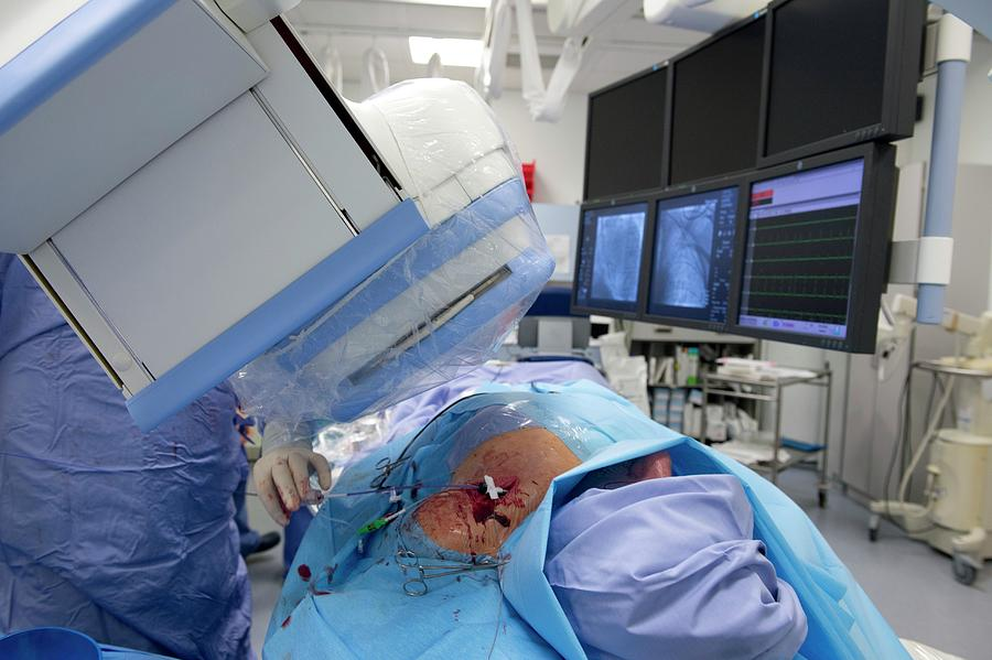 X-ray Machine Photograph - Implantable Defibrillator Surgery by Dr P. Marazzi/science Photo Library