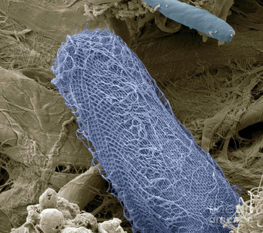 Animal Photograph - Ciliate Protozoan Sem by Steve Gschmeissner